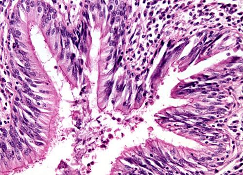 Bronquiectasias: Drenaje de Secreciones con RC-Cornet (Para pacientes)