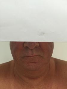 Efecto Facial de los esteroides