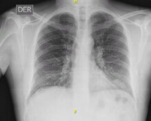ABP alérgica Eosinofilia Pulmonar