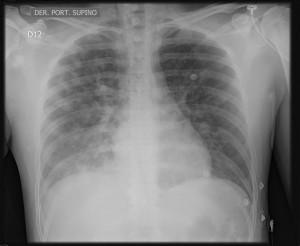 dema pulmonar de las alturas