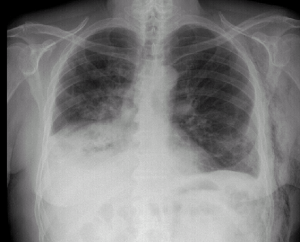 Adenocarcinoma Mucinoso de Pulmón