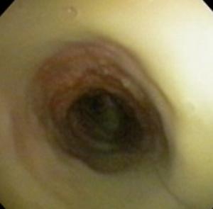 Traqueobroncopatía Osteocondroplástica 2