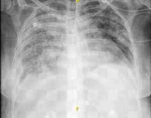 Lesión Pulmonar por Eberolymus